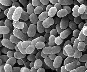 腸管出血性大腸菌(O157)